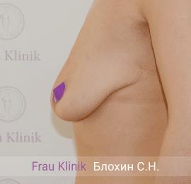 Подтяжка груди с увеличением 11