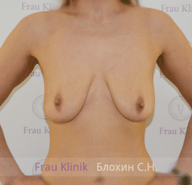 Подтяжка груди с увеличением 27