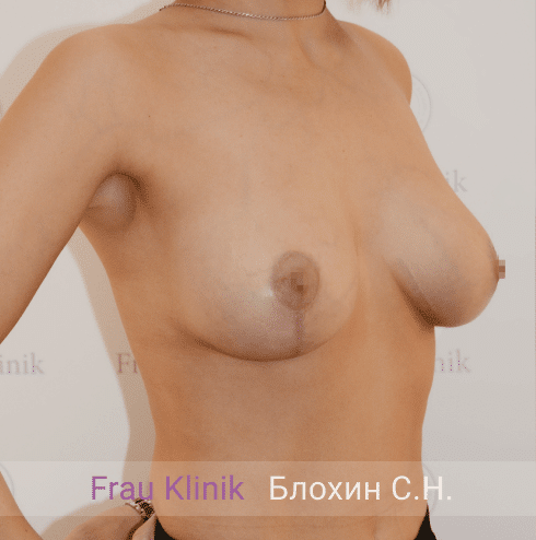 Подтяжка груди с увеличением 16