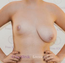 Коррекция асимметрии груди 3
