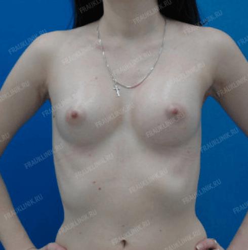 Коррекция асимметрии груди 14