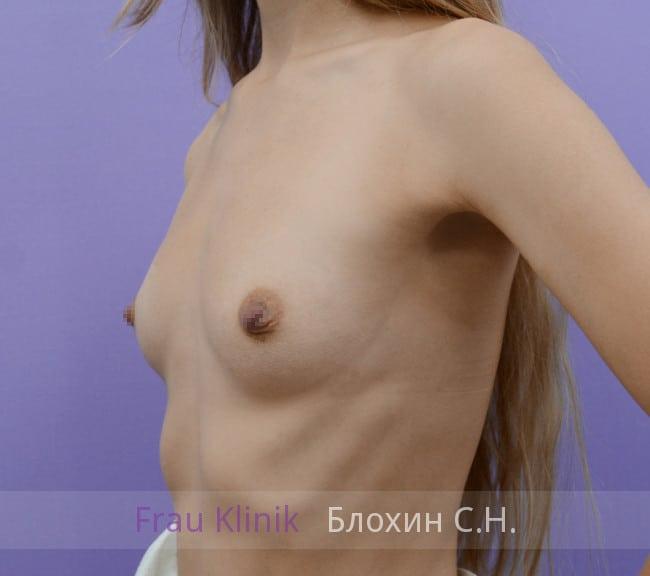 Эндоскопическое увеличение груди 3