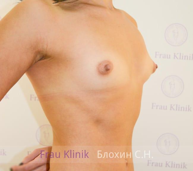 Эндоскопическое увеличение груди 25