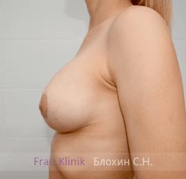Коррекция ассиметрии груди 36