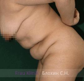 Абдоминопластика 15