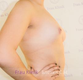 Коррекция ассиметрии груди 7
