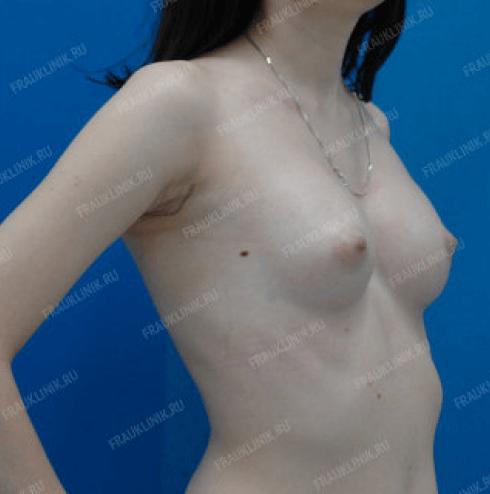Коррекция ассиметрии груди 18