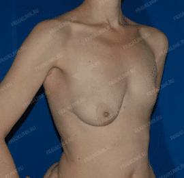 Коррекция асимметрии груди 23