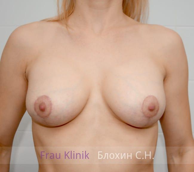 Маммопластика 9