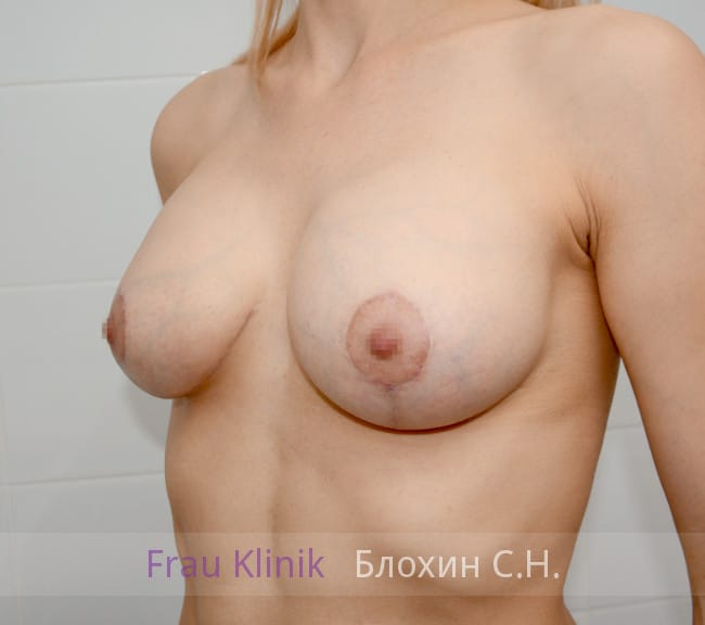 Пластика груди после родов 5