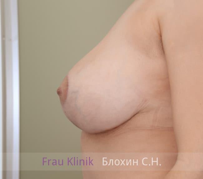 Пластика груди после родов 9