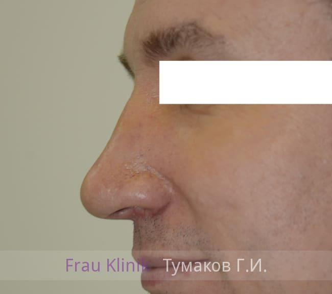 Пластика лица 19