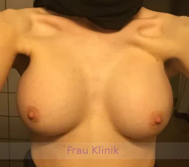 Удаление грудных имплантатов 2