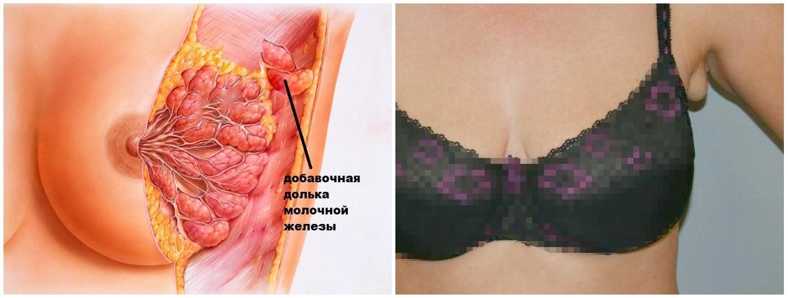 Удаление добавочных долей молочной железы 1