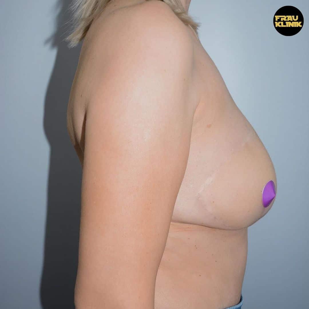 Рак груди — не приговор! 12