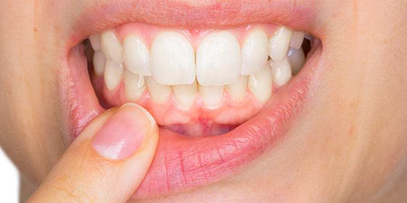 tratamientos dentales sin costo