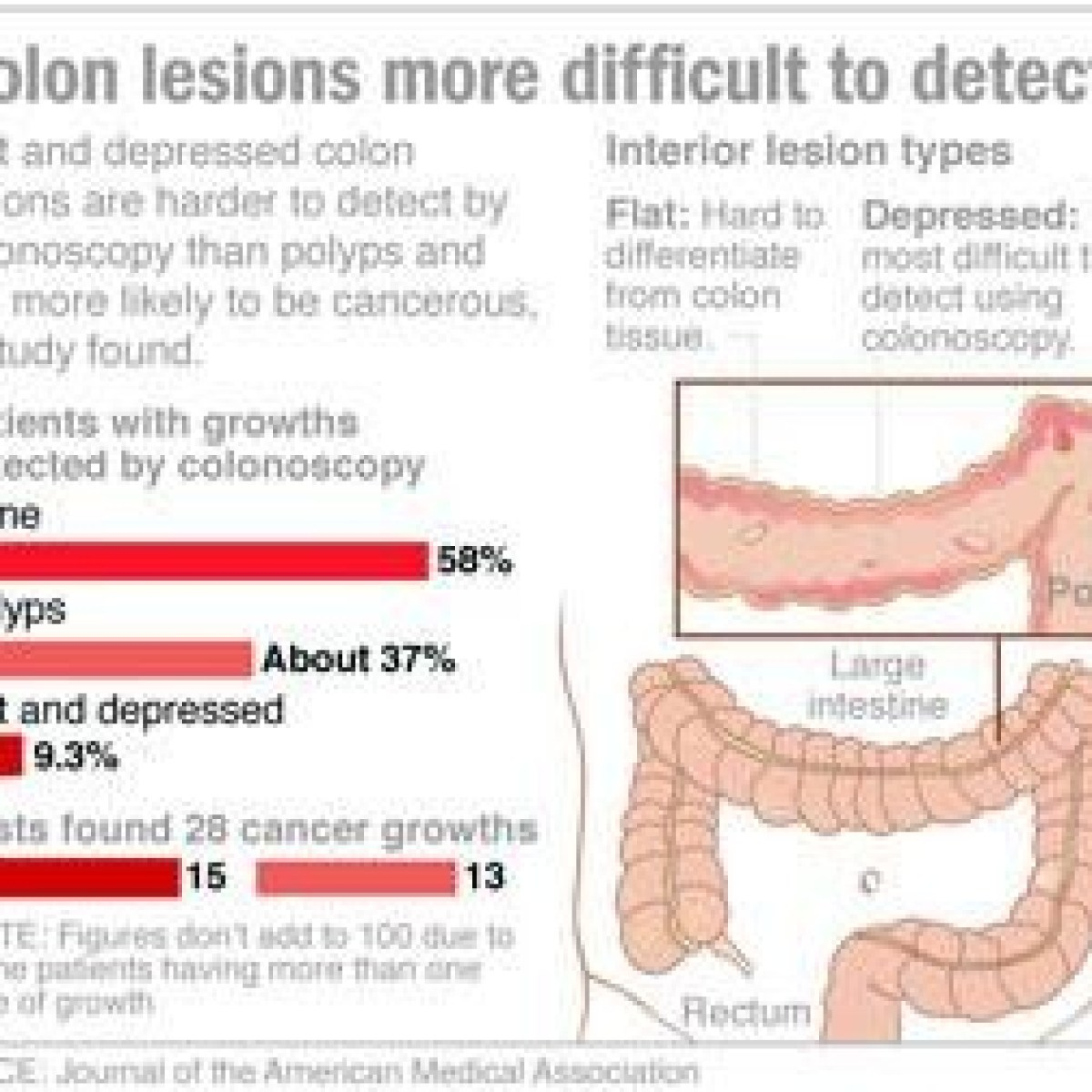 medium resolution of flat colon growths more likely to harbor cancer than polyps study finds national azdailysun com