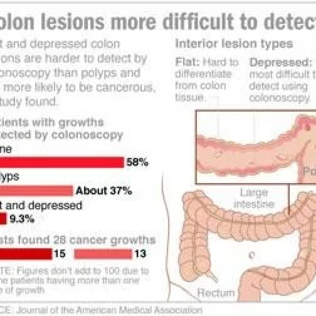 small resolution of flat colon growths more likely to harbor cancer than polyps study finds national azdailysun com