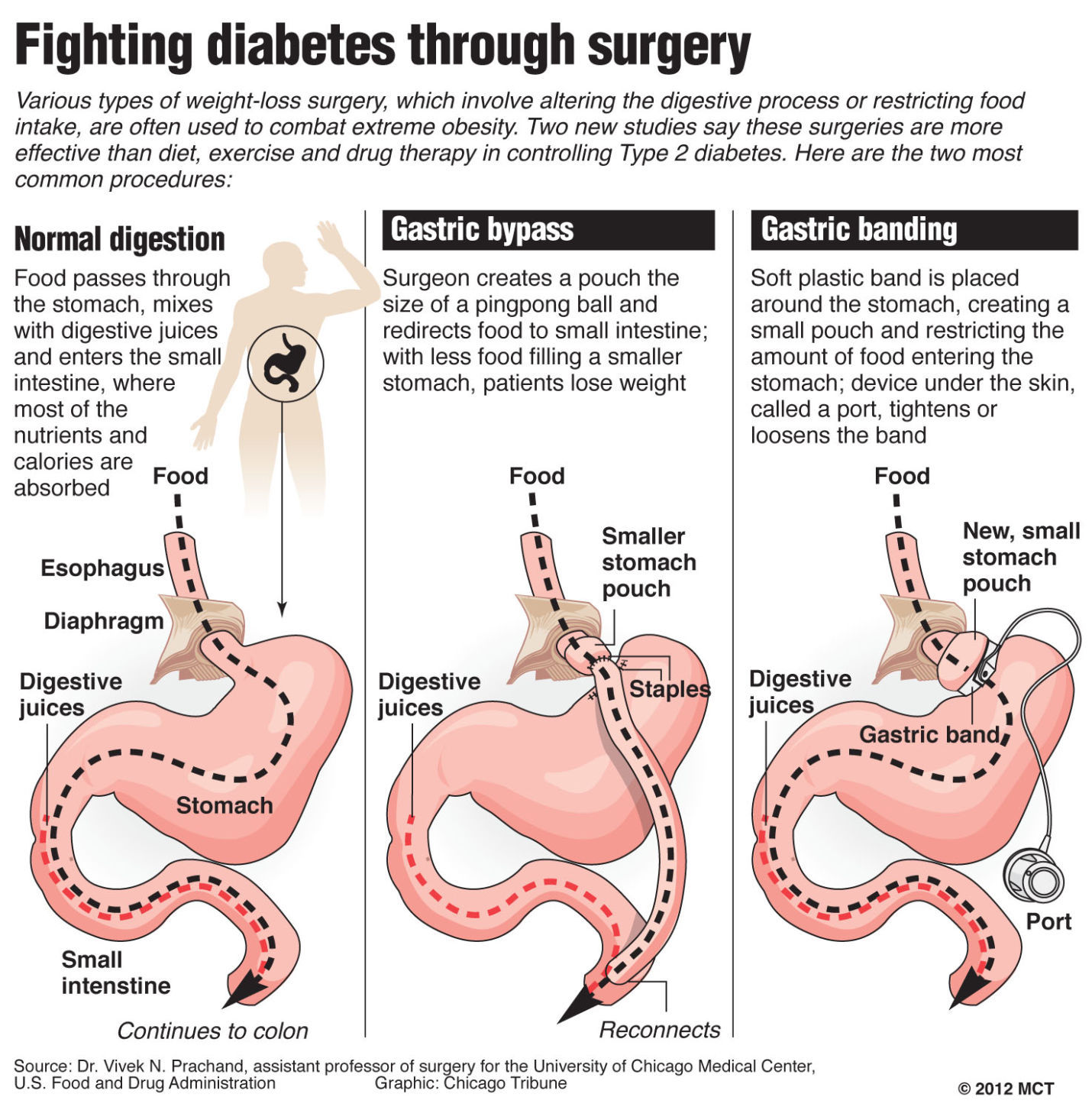 gastric bypass diagram 3 pole 4 wire grounding billings clinic accreditation opens up weight loss surgery