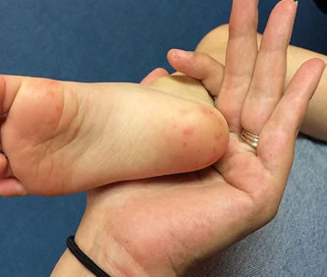 Hand Foot And Mouth Disease Hits Area