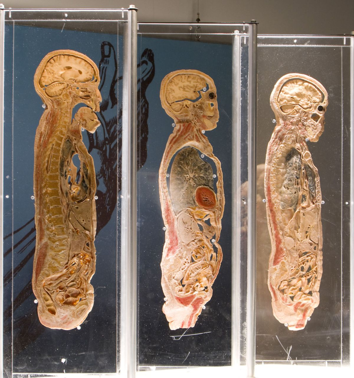 'bodies Revealed' Returns Science Center Life