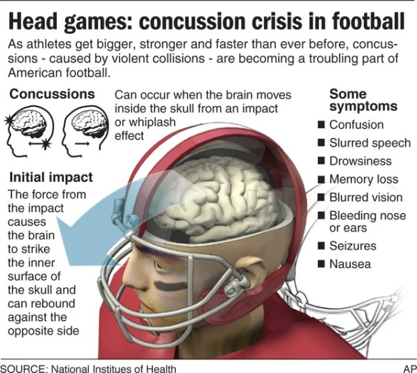 Concussion what you should know about sports and brain