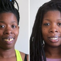 Bullies tried to break her. Instead, they helped Jessica McDaniels get a new smile.