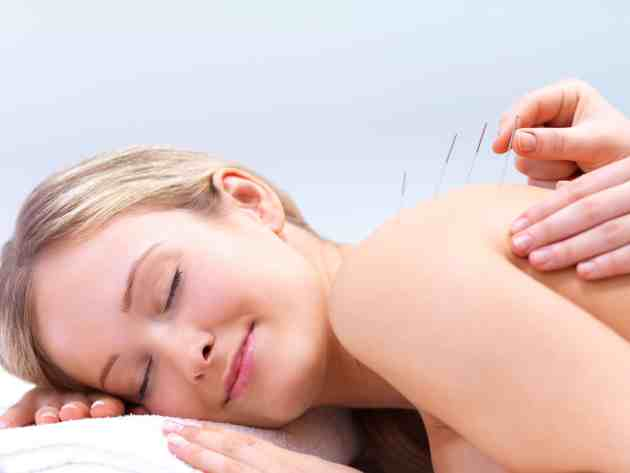 Acupuncture for scars