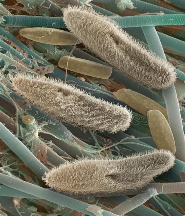 Paramecium - single celled animals.