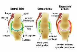 arthritis and acupuncture