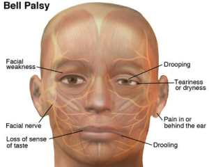 bell's palsy and acupuncture