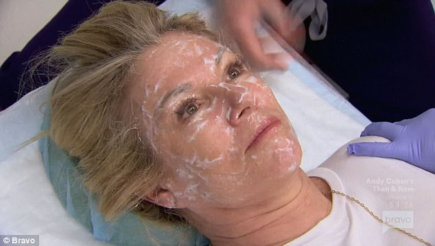 Ramona Singer getting a facial procedure starting with numbing cream