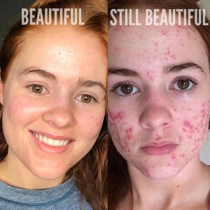 "Side by Side comparison with of Kali Kusher with no acne captioned ""beautiful"" (on left) and picture of Kali Kushner with cystic acne captioned ""Still beautiful"" (on right.)"