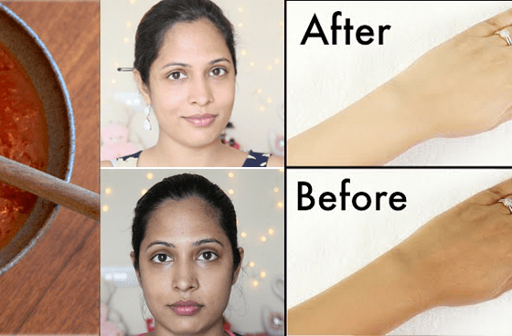 How To Get rid of Sun Tan Naturally From Face & Arms 4