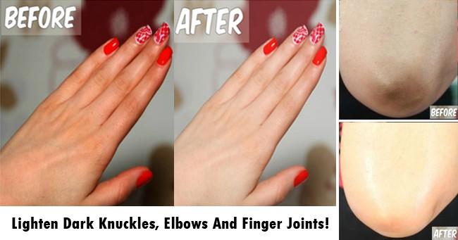 Lighten Dark Knuckles, Elbows And Finger Joints
