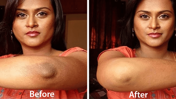 How To Get Rid Of Dark Knees And Elbows In 10 Days 2