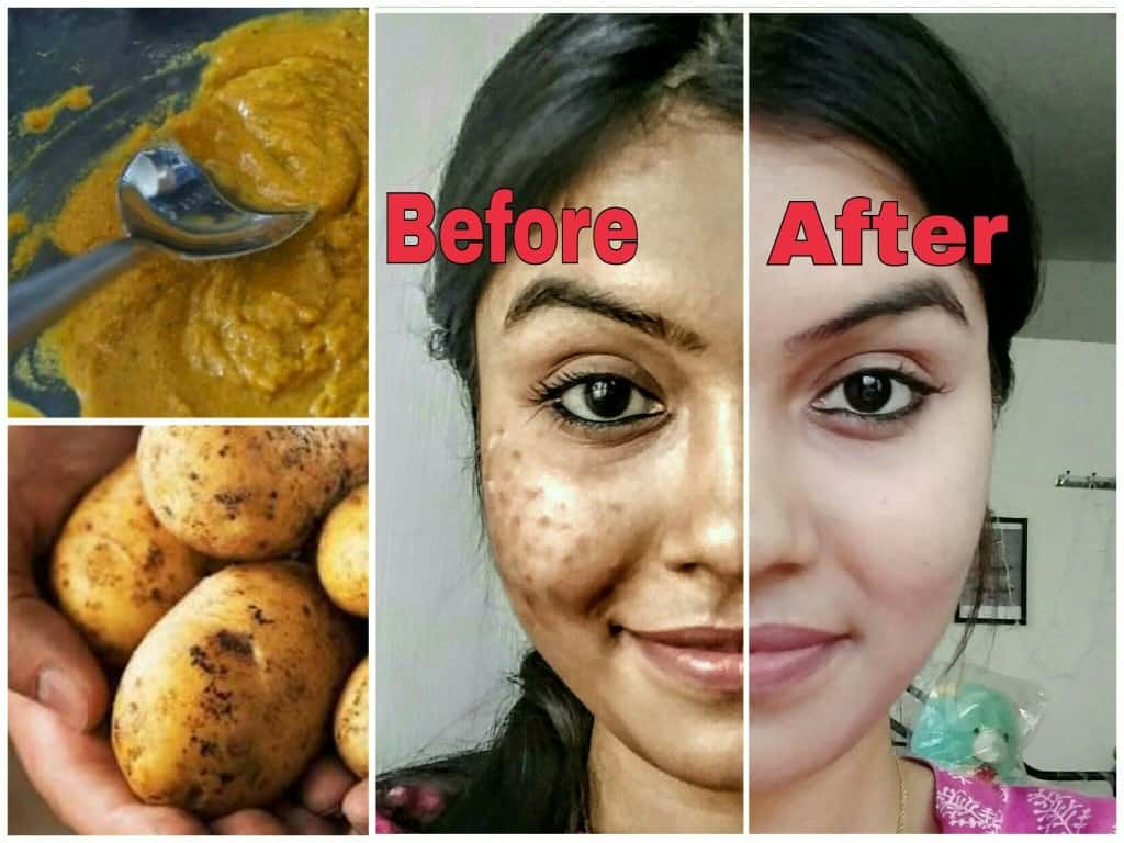 10 Ways To Use Potatoes For Your Skin And Health 3