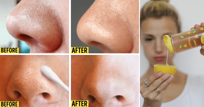 Remove Blackheads and Whiteheads