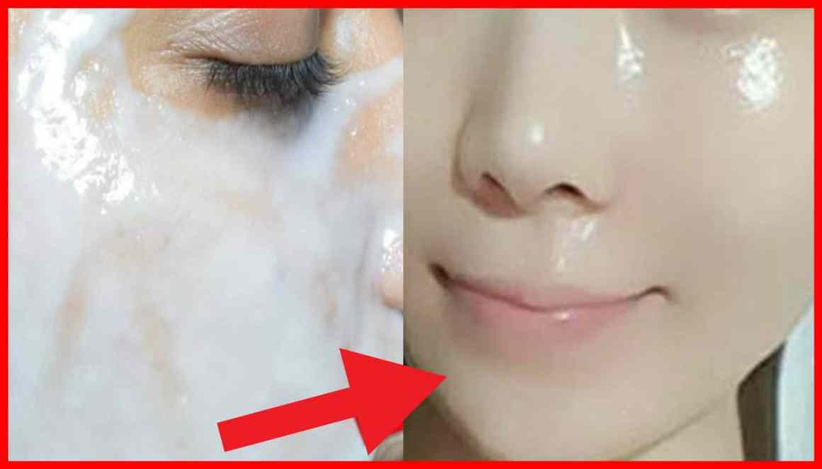 Remove acne and scars with this simple home remedy 1