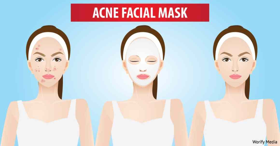 Check Out 3 Fresh Home Remedies for Acne Prone Skin 1