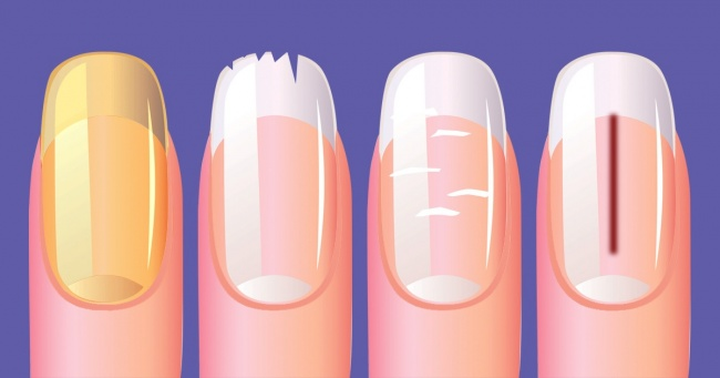 10 Best Things That Your Nails Can Reveal About Your Health 5