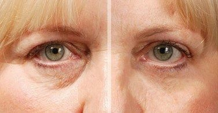 6 Best Tips To Shine The Facial Skin 5