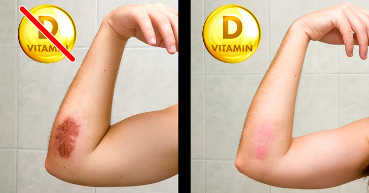 7 Best Signs That Prove Your Body Needs Vitamin Desperately 6