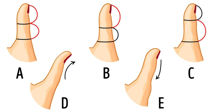 Check Out What The Shape Of Your Thumb Reveals About Your Personality 2