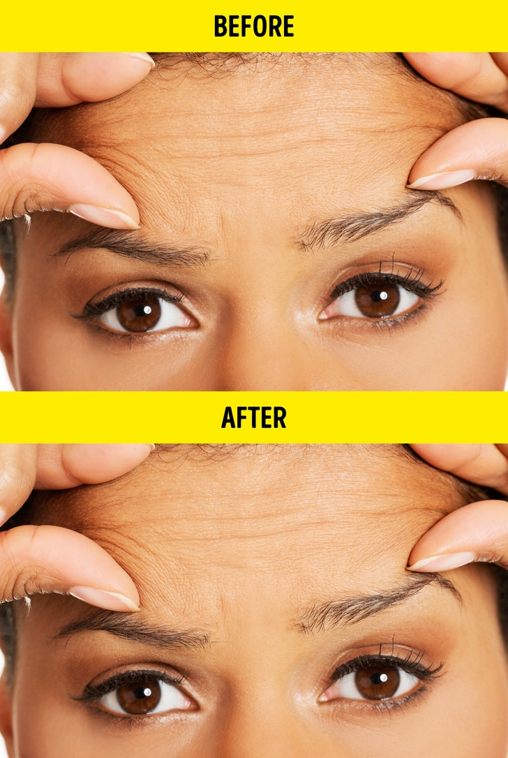 Top 8 Beauty Procedures That Can Never Get Done On Themselves 4