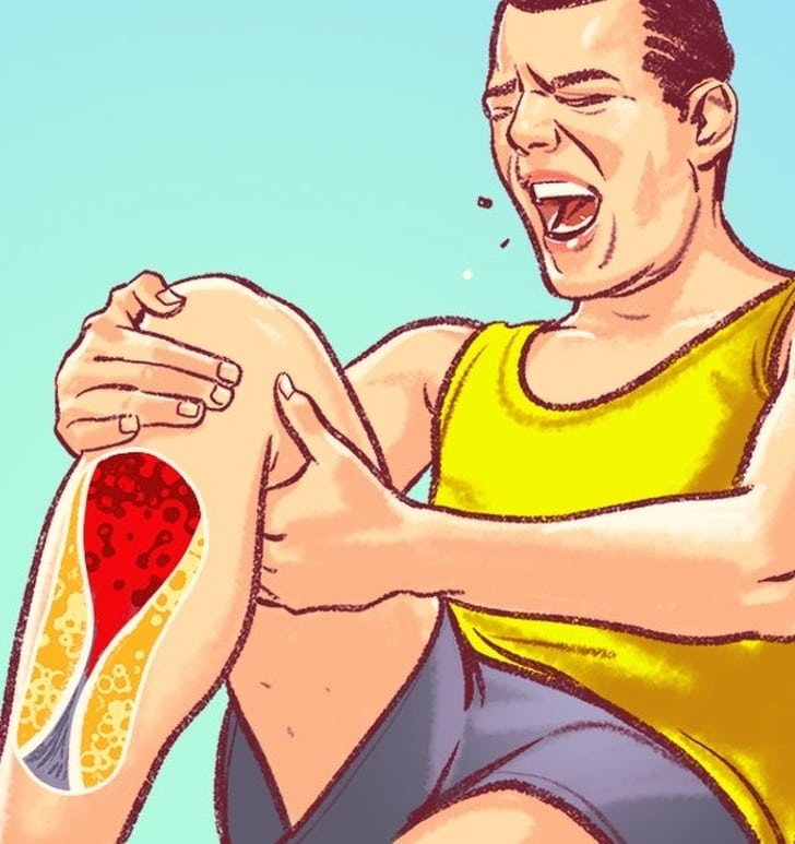 7 Severe Signs Of Damaged Arteries That We Generally Ignore 2