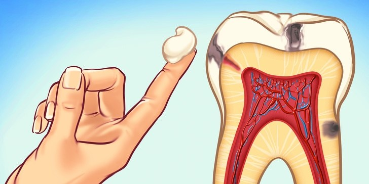 7 Ways to get rid of the tooth decay