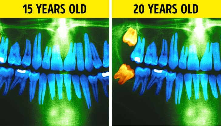 24 Changes That Take Place In A Human Body Every 10 Years 2