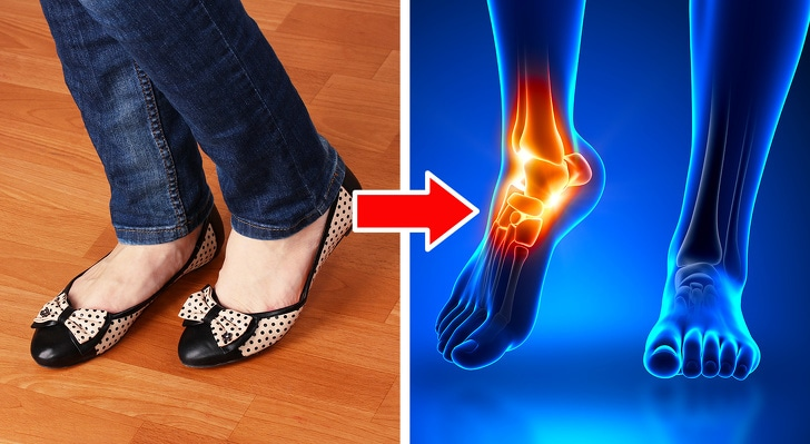 6 Types Of Shoes That Can Damage Your Body Too Badly 3