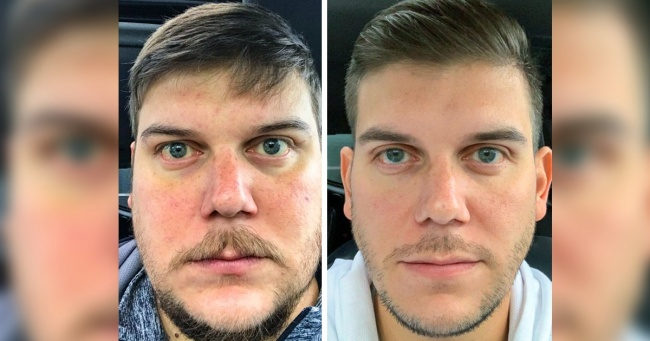 Changes That You Usually See After You Stop Drinking Alcohol From Last 28 Days 9